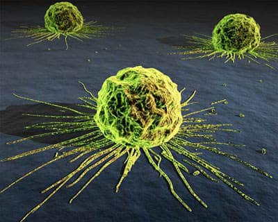 Альтернативное лечение рака. Альтернативные методы лечения рака.